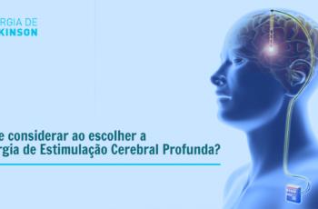O que considerar ao escolher a Cirurgia de Estimulação Cerebral Profunda?