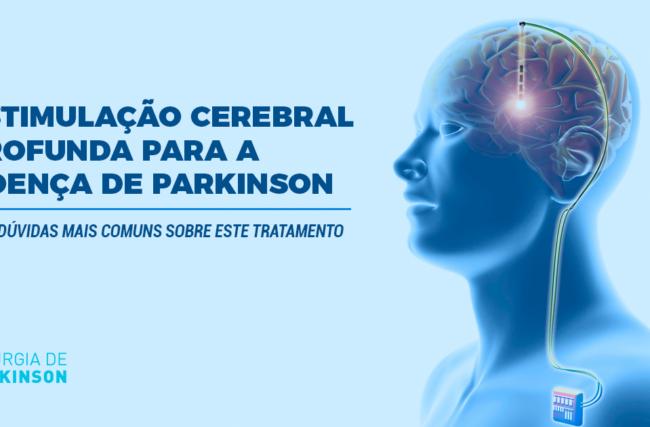 Estimulação Cerebral Profunda para a Doença de Parkinson – As 7 dúvidas mais comuns sobre este tratamento.